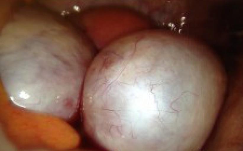 Yumurtalık kist çıkarılması (Kistektomi)