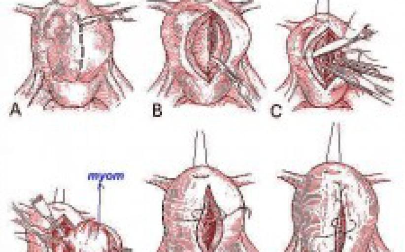 Jinekolojik Operasyonlar-Myom