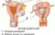 Miyom nedir?