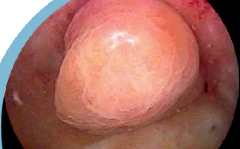 Histeroskopi ile Miyom çıkarılması operasyonu