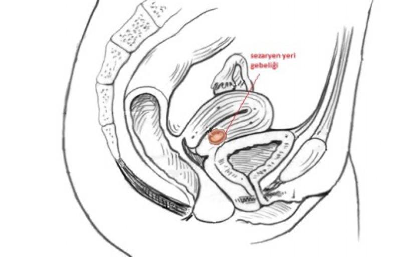 Sezaryen yara yerinde dış gebelik nedir? (sezaryen skar gebeliği)