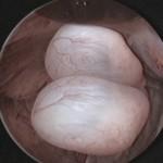 Histeroskopi ile rahim içinde 2 adet polip görünümü