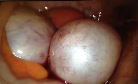 Endometriozis ve Çukulata Kistleri