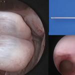 Histeroskopi Operatif