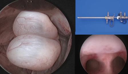 Histeroskopi Nedir? Nasıl uygulanır ?