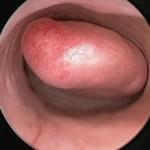 Histeroskopi ile rahim içinde polip görünümü
